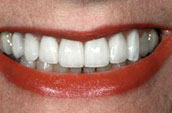 Cosmetic Dentistry After Photo - Dr. Jay W. Dorgan DDS