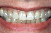 Cosmetic Dentistry in Kennett Square, PA Before Photo