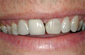 Dental Makeovers - Before Photo - Kennett Square Pennsylvania