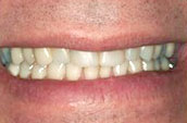 Dental Makeovers and Whitening - Dr. Jay W. Dorgan, DDS - Kennett Square