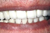 Dental Veneers After Photo