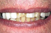 Dental Veneers Before Photo