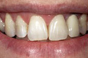 Dentist Kennett Square PA - Before Photo