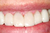 Dental Whitening After Photo - Kennett Square, PA