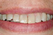 Whitening Before Photo - Dentist - Kennett Sqare, PA
