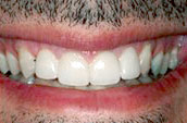 Dr. Dorgan Dentistry - Kennett Square - After Photo