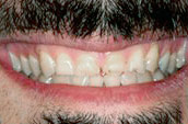 Dr. Dorgan Dentistry - Kennett Square - Before Photo