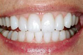 Dentists in Kennett Square - After Photo