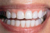 Dentists in Kennett Square - Before Photo