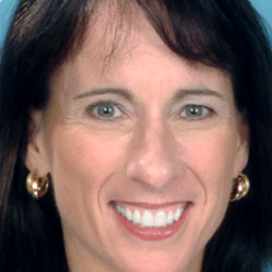 Diane B. - Dental Smile Makeover Testimonial
