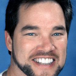 Fred B. - Dental Smile Makeover Testimonial