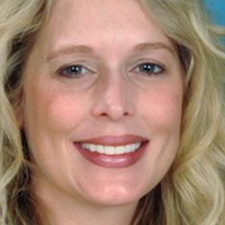 Pam G. - Dental Smile Makeover Testimonial
