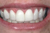 Smile Makeover at Jay W. Dorgan Dentistry