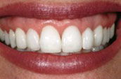 Teeth Whitening After Photo - Dr. Jay W. Dorgan DDS