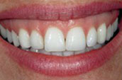 Teeth Whitening Before Photo - Jay W. Dorgan DDS