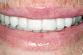 Tooth Cleaning After Photo - Dr. Jay W. Dorgan, DDS