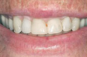Tooth Cleaning Before Photo - Dr. Jay W. Dorgan, DDS