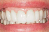 Teeth Straightening - Kennett Square, PA - After Photo