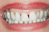 Teeth Straightening - Kennett Square, PA - Before Photo